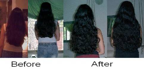 Msm Hair Growth